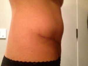 02/11/13 - Abd scar, R side